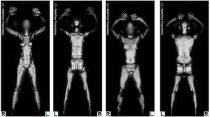 full body x-ray scan for the tsa.